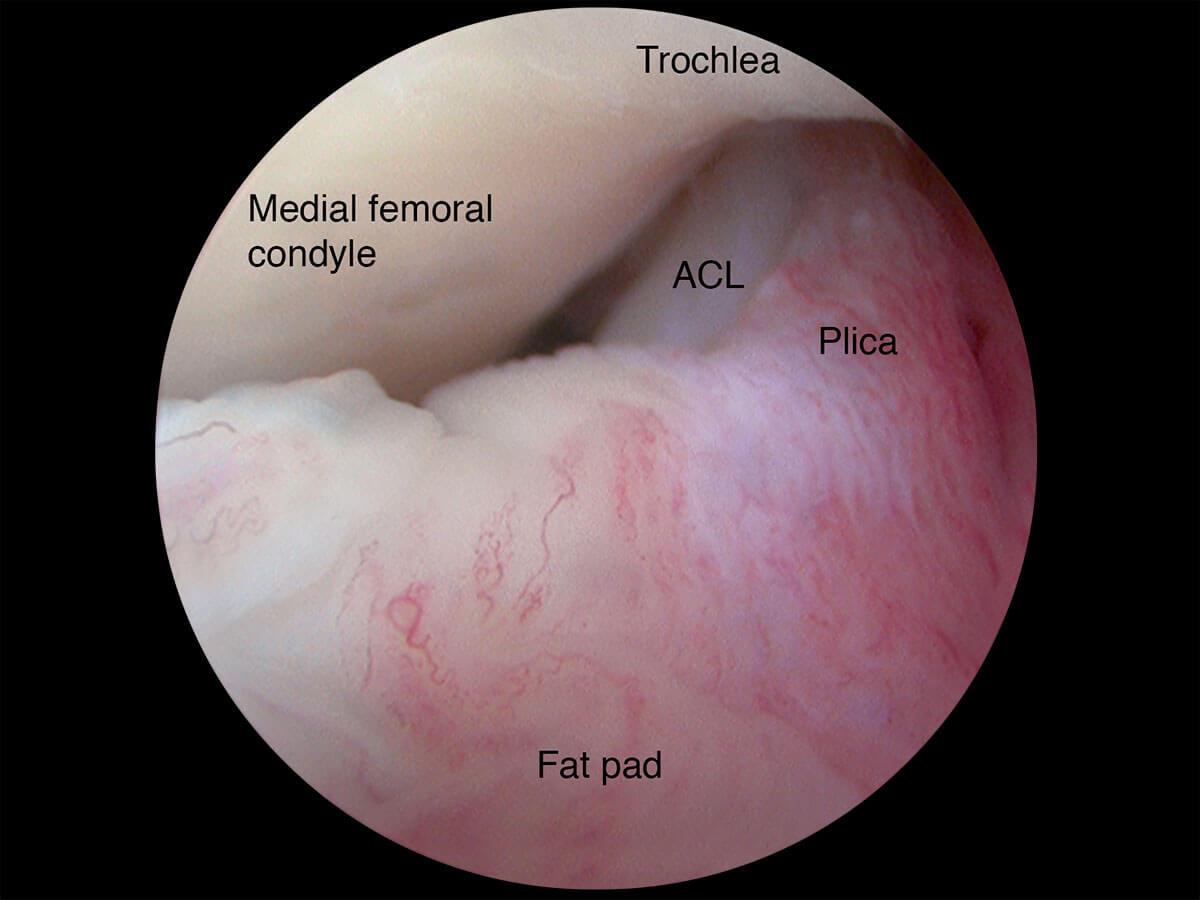 Anterior Cruciate Ligament Injury | Orthopaedic Surgeon In Wantrina ...