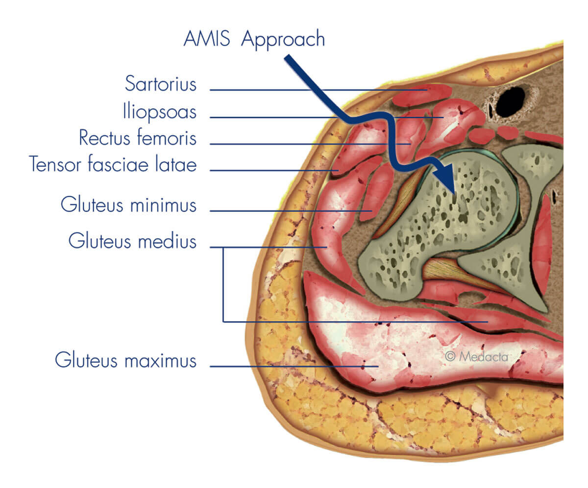 Minimally Invasive Direct Anterior Hip Replacement Surgery ...